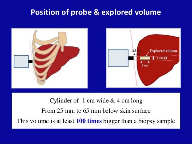 Position of probe & explored volume Cylinder of 1 cm wide & 4 cm long From 25 mm to 65 mm below skin surface This volume i...