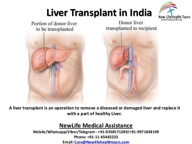 Liver Transplant in India A liver transplant is an operation to remove a diseased or damaged liver and replace it with a p...