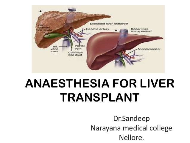 ANAESTHESIA FOR LIVER TRANSPLANT Dr.Sandeep Narayana medical college Nellore.
