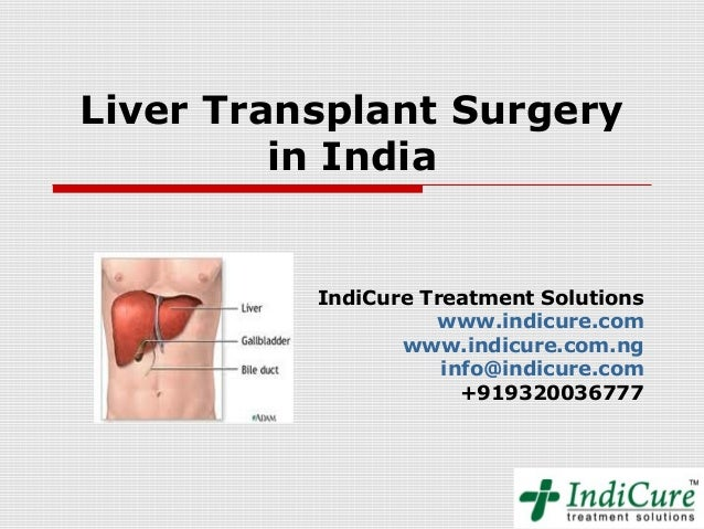 Liver Transplant Surgery         in India          IndiCure Treatment Solutions                    www.indicure.com       ...