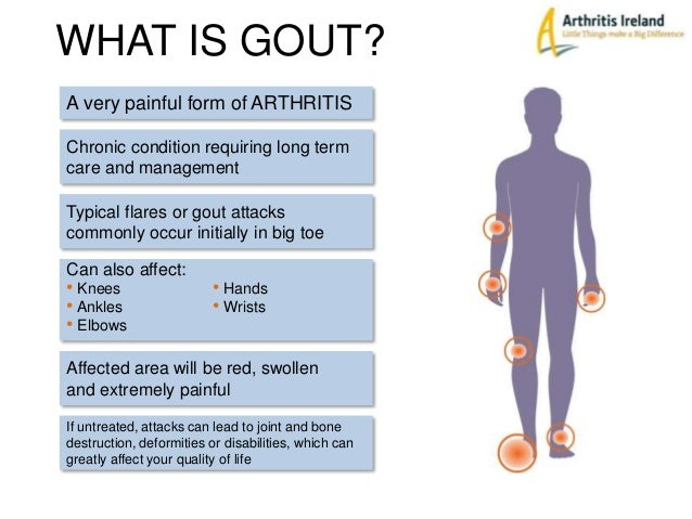 Gout diet: What's allowed, what's not