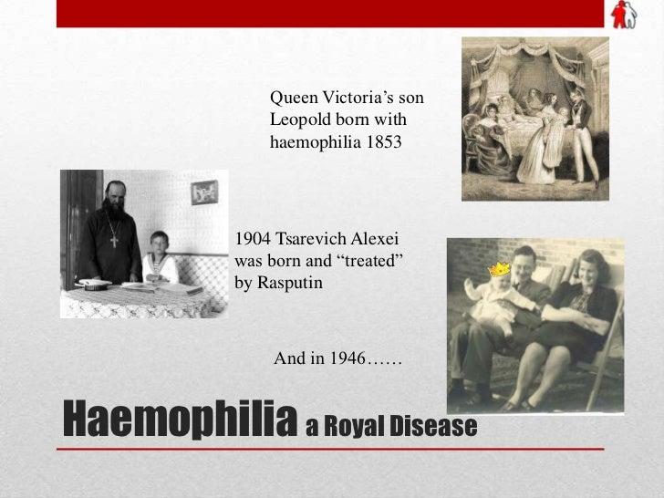 """Queen Victoria's son Leopold born with haemophilia 1853<br />1904 Tsarevich Alexei was born and """"treated"""" by Rasputin<br /..."""