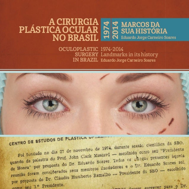 A CirurgiA PlástiCAOCulAr nO BrAsil OCulOPlAstiC surgErY in BrAZil 1974-2014 Landmarks in its history Eduardo Jorge Carnei...