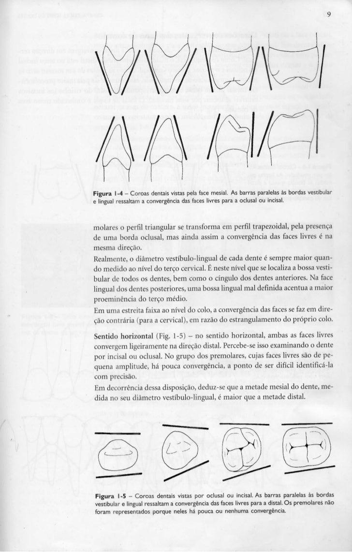 Figura 1-4 - Coroas dentais vistas pela face mesial. As barras paralelas às bordas vestibulare lingual ressaltam a converg...
