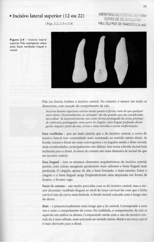 35• Incisivo lateral superior (12 ou 22)                                     UNIVÊWDADS f                oo PARA          ...