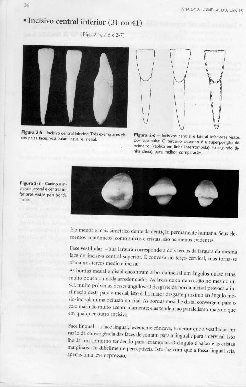 ANATOMIA INDIVIDUAL DOS DENTES  Incisivo central inferior (31 ou 41)                                   (Figs. 2-5, 2-6 e 2...