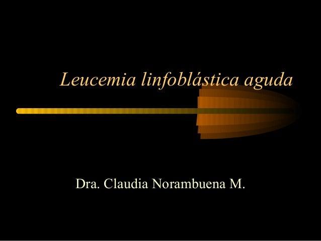 Leucemia linfoblástica aguda Dra. Claudia Norambuena M.