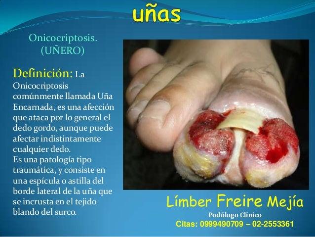 Onicocriptosis. (UÑERO)  Definición: La Onicocriptosis comúnmente llamada Uña Encarnada, es una afección que ataca por lo ...