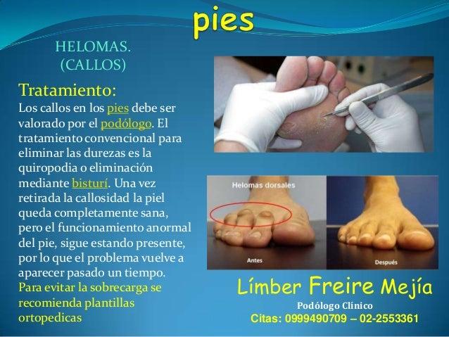 HELOMAS. (CALLOS)  Tratamiento: Los callos en los pies debe ser valorado por el podólogo. El tratamiento convencional para...