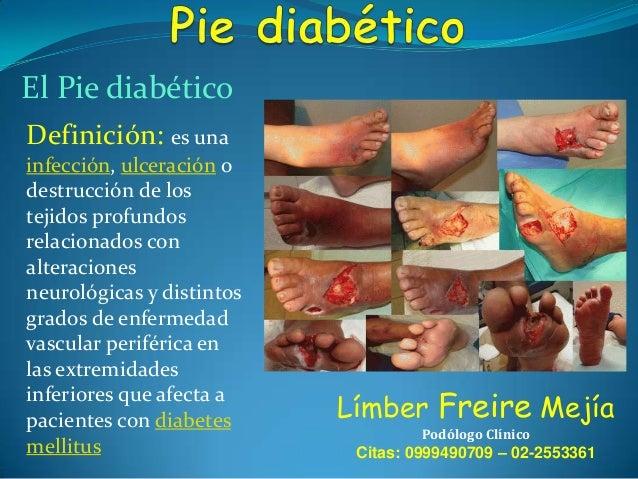 El Pie diabético Definición: es una infección, ulceración o destrucción de los tejidos profundos relacionados con alteraci...