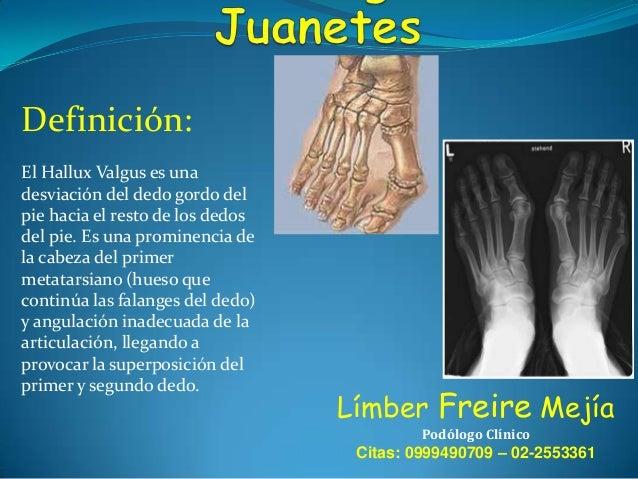 Definición: El Hallux Valgus es una desviación del dedo gordo del pie hacia el resto de los dedos del pie. Es una prominen...