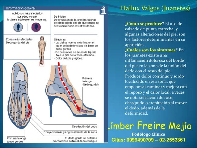Hallux Valgus (Juanetes) ¿Cómo se produce? El uso de calzado de punta estrecha, y algunas alteraciones del pie, son los fa...