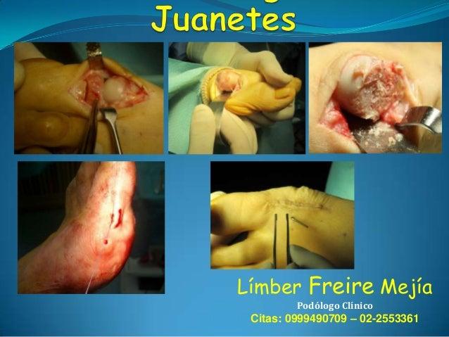 Límber Freire Mejía Podólogo Clínico  Citas: 0999490709 – 02-2553361