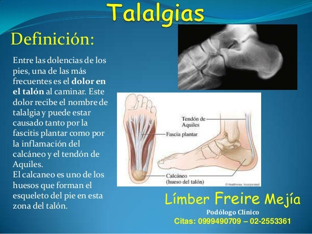 Tratamiento: El dolor suele ser muy intenso, y se agrava según continuamos moviendo el pie, por lo que el tratamiento suel...