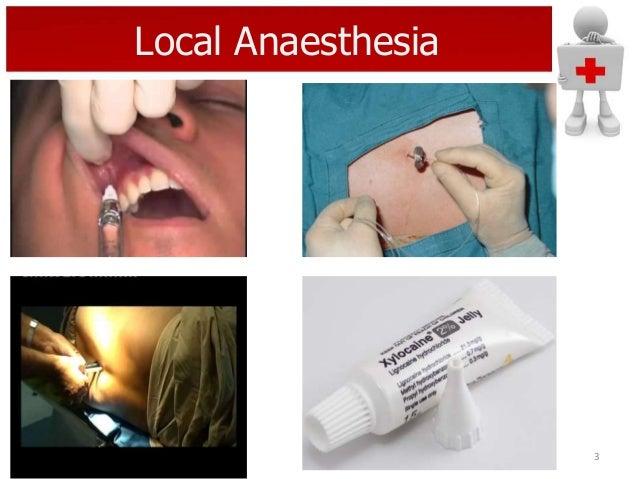 Local Anaesthesia  3
