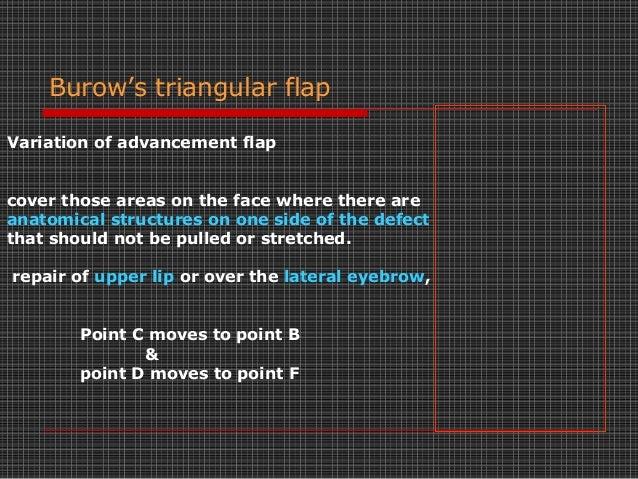 Burow S Triangle Dog Ear