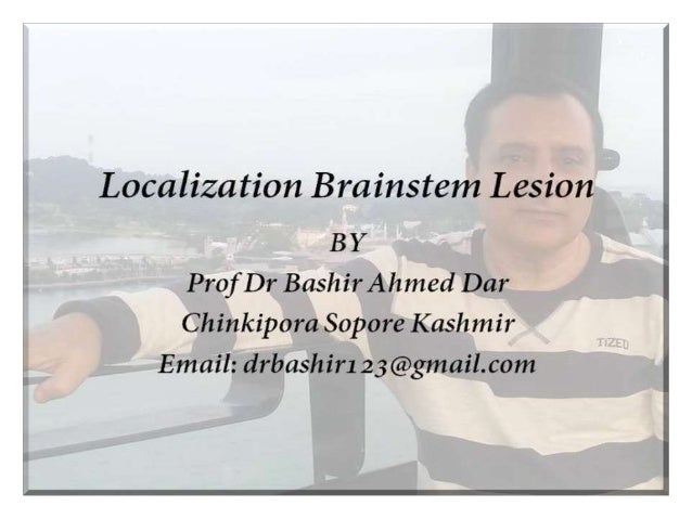 Brainstem • Brainstem comprises of Midbrain, Pons and Medulla • Lecture on brainstem lesion is actually a continuation of ...