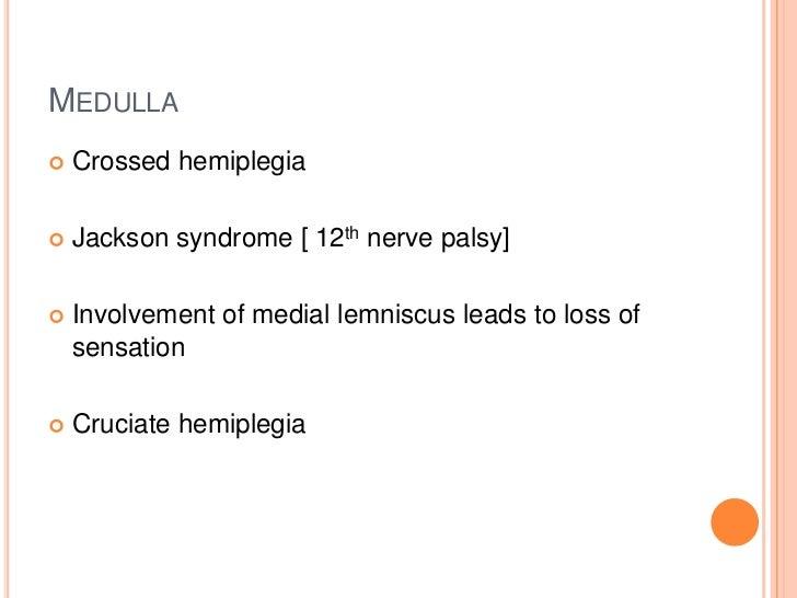 MEDULLA   Crossed hemiplegia   Jackson syndrome [ 12th nerve palsy]   Involvement of medial lemniscus leads to loss of ...