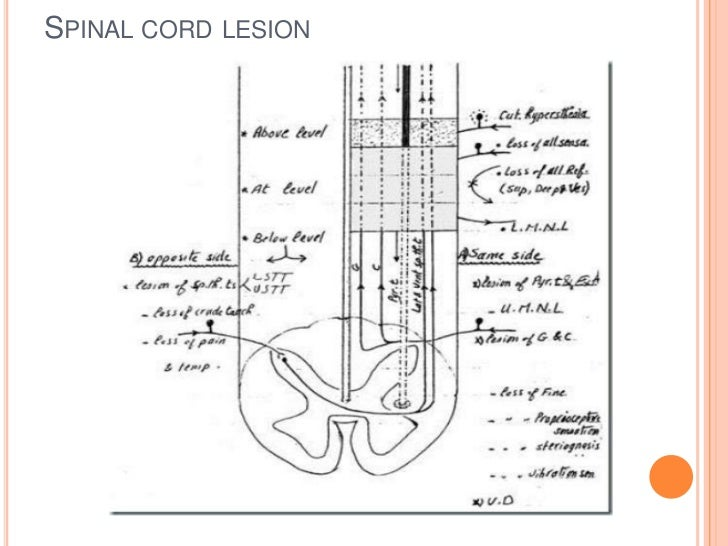 SPINAL CORD LESION