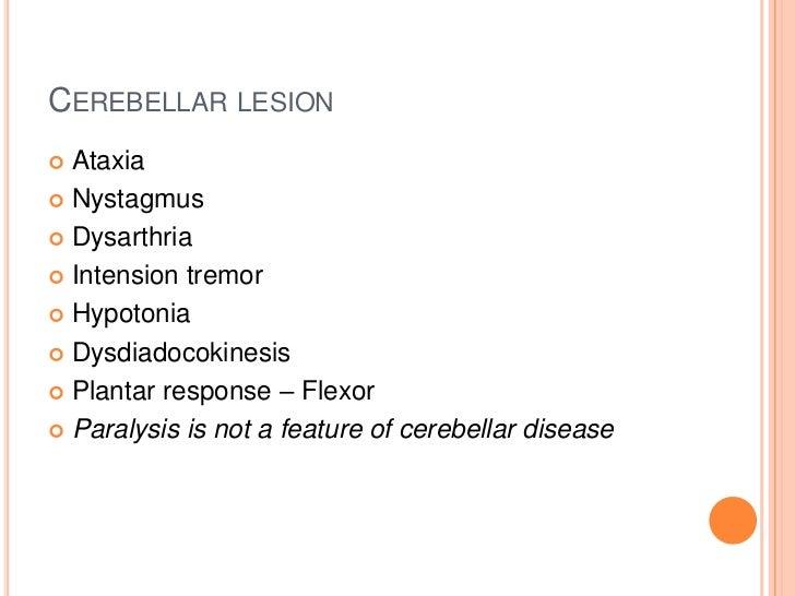 CEREBELLAR LESION Ataxia Nystagmus Dysarthria Intension tremor Hypotonia Dysdiadocokinesis Plantar response – Flexo...