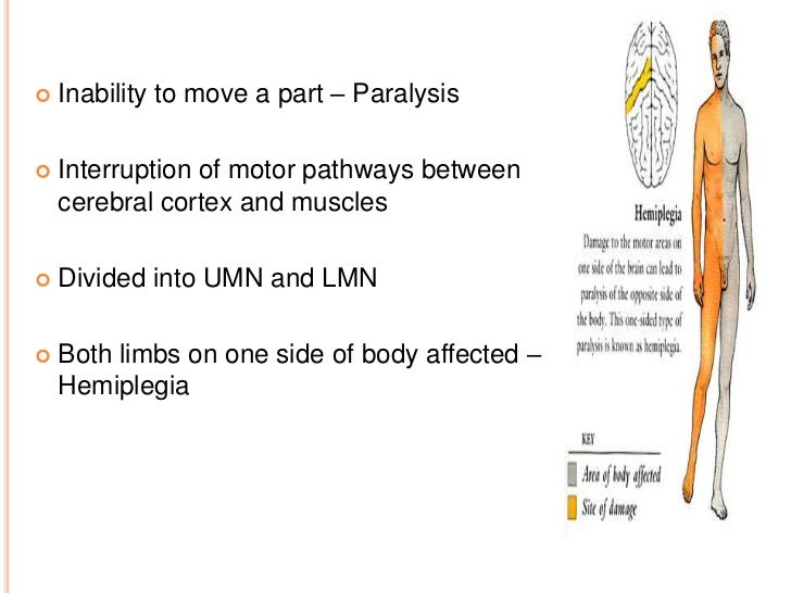    Inability to move a part – Paralysis   Interruption of motor pathways between    cerebral cortex and muscles   Divid...