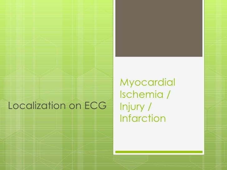 Myocardial Ischemia /  Injury / Infarction Localization on ECG