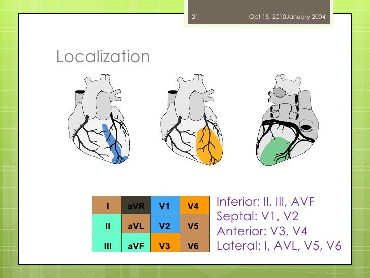 Localization Dr. UZMA ANSARI Inferior: II, III, AVF Septal: V1, V2 Anterior: V3, V4 Lateral: I, AVL, V5, V6 Oct 15, 2010 J...