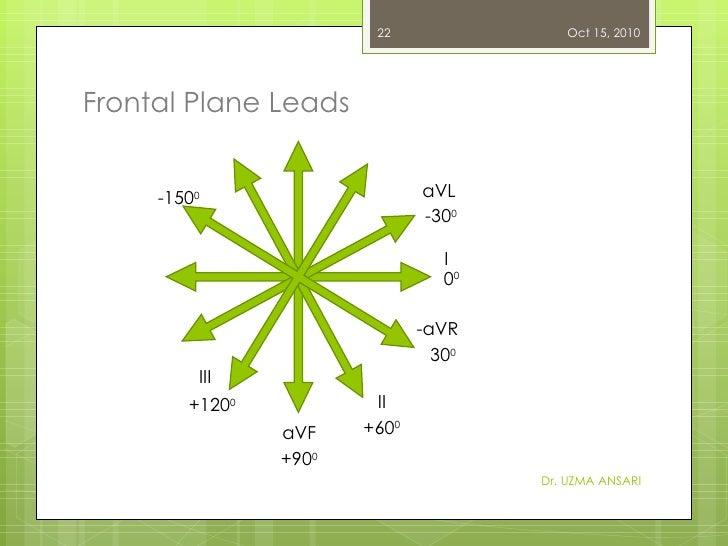 Frontal Plane Leads Dr. UZMA ANSARI aVL  -30 0 I II III 0 0 aVF -aVR +90 0 +60 0 +120 0 -150 0 30 0 Oct 15, 2010