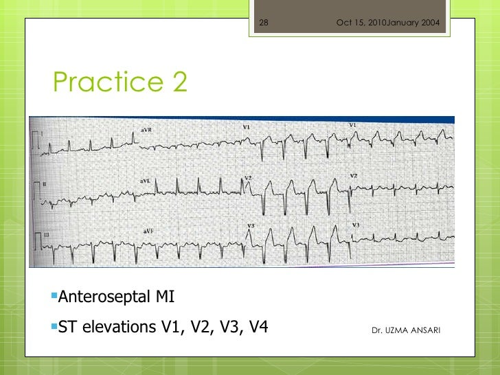 Practice 2 Dr. UZMA ANSARI <ul><li>Anteroseptal MI </li></ul><ul><li>ST elevations V1, V2, V3, V4 </li></ul>Oct 15, 2010 J...