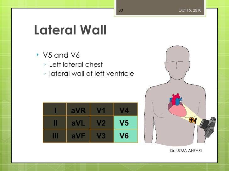 Lateral Wall <ul><li>V5 and V6 </li></ul><ul><ul><li>Left lateral chest </li></ul></ul><ul><ul><li>lateral wall of left ve...