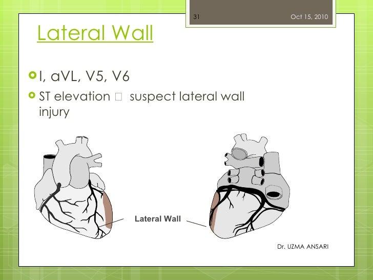 Lateral Wall <ul><ul><li>I, aVL, V5, V6 </li></ul></ul><ul><ul><li>ST elevation    suspect lateral wall injury </li></ul>...