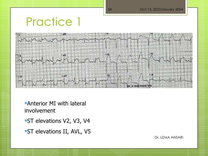 Practice 1 Dr. UZMA ANSARI <ul><li>Anterior MI with lateral involvement </li></ul><ul><li>ST elevations V2, V3, V4  </li><...