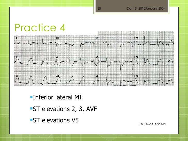 Practice 4 Dr. UZMA ANSARI <ul><li>Inferior lateral MI </li></ul><ul><li>ST elevations 2, 3, AVF </li></ul><ul><li>ST elev...