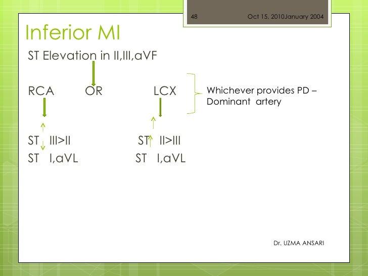 Inferior MI  <ul><li>ST Elevation in II,III,aVF </li></ul><ul><li>RCA  OR  LCX   </li></ul><ul><li>ST  III>II  ST  II>III ...