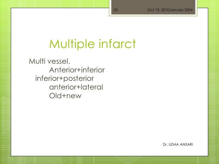 Multiple infarct <ul><li>Multi vessel. Anterior+inferior  inferior+posterior anterior+lateral Old+new  </li></ul>Oct 15, 2...