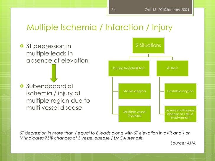 Multiple Ischemia / Infarction / Injury <ul><li>ST depression in multiple leads in absence of elevation </li></ul><ul><li>...