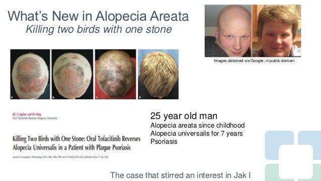 Long Term Treatment for Severe Alopecia Areata with Oral Tofacitinib Citrate Slide 2