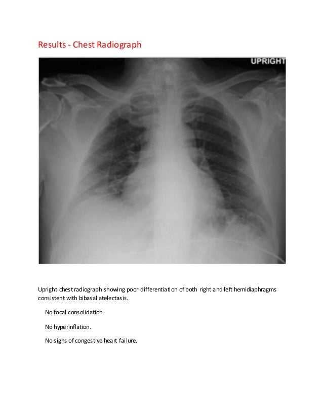Long case template abdominal pain and vomiting 50 year old male 19 pronofoot35fo Images