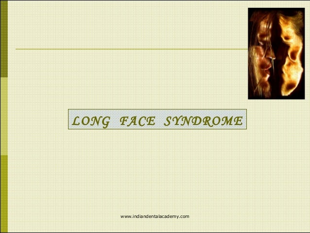 Long face syndrome /certified fixed orthodontic courses by ...
