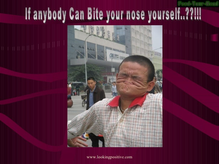 If anybody Can Bite your nose yourself..??!!!