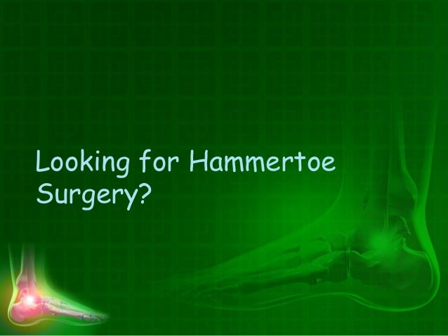 Looking for Hammertoe Surgery?