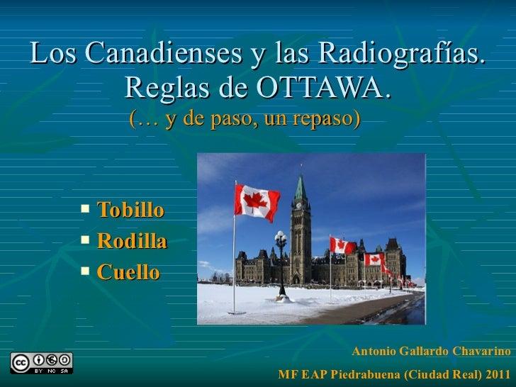Los Canadienses y las Radiografías. Reglas de OTTAWA. (… y de paso, un repaso) <ul><li>Tobillo </li></ul><ul><li>Rodilla <...