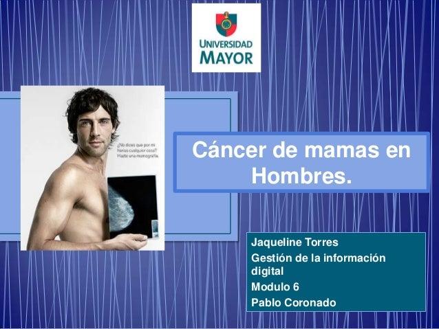 Cáncer de mamas en    Hombres.    Jaqueline Torres    Gestión de la información    digital    Modulo 6    Pablo Coronado