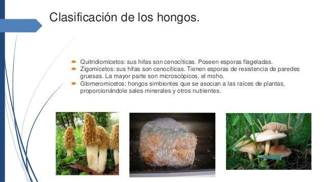 Los hongos 1 - Tipos de hongos en la pared ...