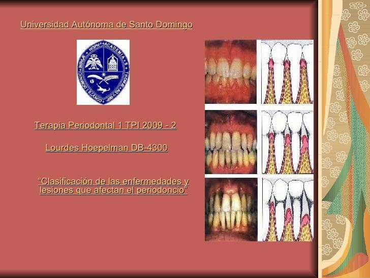 <ul><li>Universidad Autónoma de Santo Domingo </li></ul><ul><li>Terapia Periodontal 1 TPI 2009 - 2   </li></ul><ul><li>Lou...