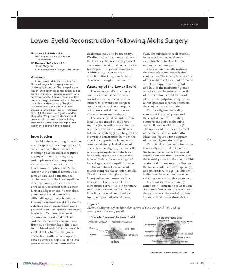 | Scientific ArticleLower Eyelid Reconstruction Following Mohs SurgeryMatthew J. Schessler, MS-III                   dehisc...