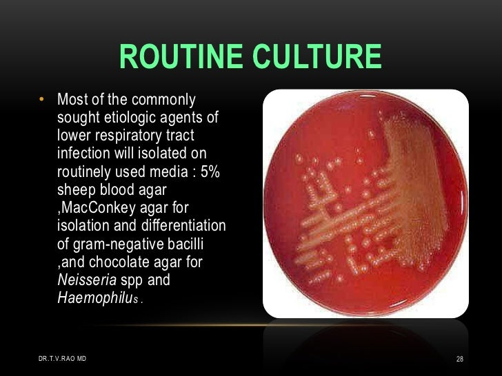 ROUTINE CULTURE• Most of the commonly  sought etiologic agents of  lower respiratory tract  infection will isolated on  ro...