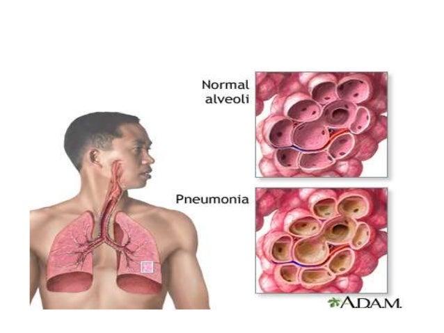 H. influenzae and M. catarrhalis are of increasing importance in both community acquired pneumonia (CAP) and acute exacerb...