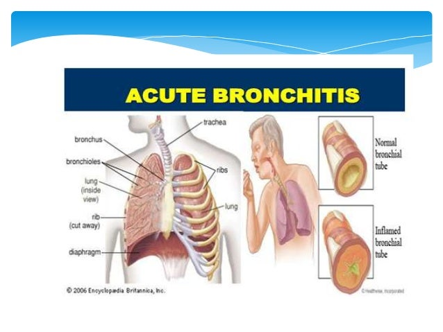 Bronchitis can be classified as either acute or chronic. Acute bronchitis can be defined as acute bacterial or viral infec...