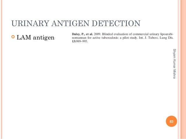 URINARY ANTIGEN DETECTION  LAM antigen 83 ShyamKumarMishra